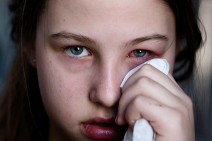 la conjuntivitis da fiebre en bebes