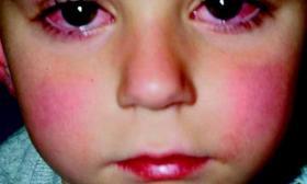 Qué es la enfermedad de Kawasaki (EK)?   Familia y Salud