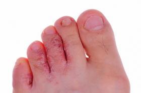 hongos entre los dedos de los pies imagen