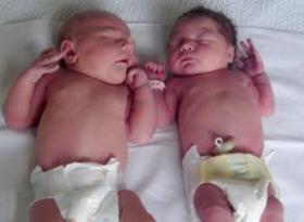 fotos de un bebe de 7 meses de diabetes gestacional